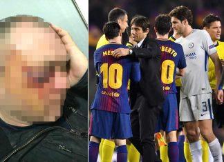 Barcelona Damage